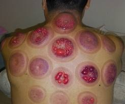 Marks left on the body after the cups were removed. Not all cupping looks this serious.