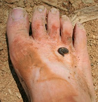 C.'s muddy foot with a leech on it. This was taken after 3 hours of walking through the jungle.